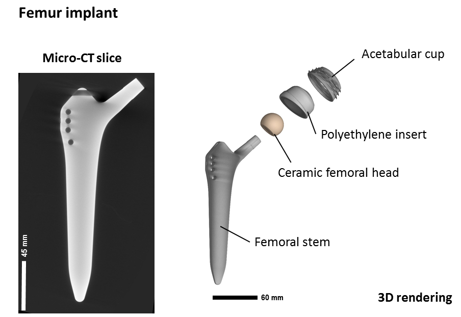 MetAMMI Femur implant en